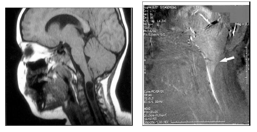 Аномалия Киари 0 типа, фазо-контрастная МРТ