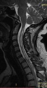 МРТ пациента с сирингомиелией и адгезивным арахноидитом