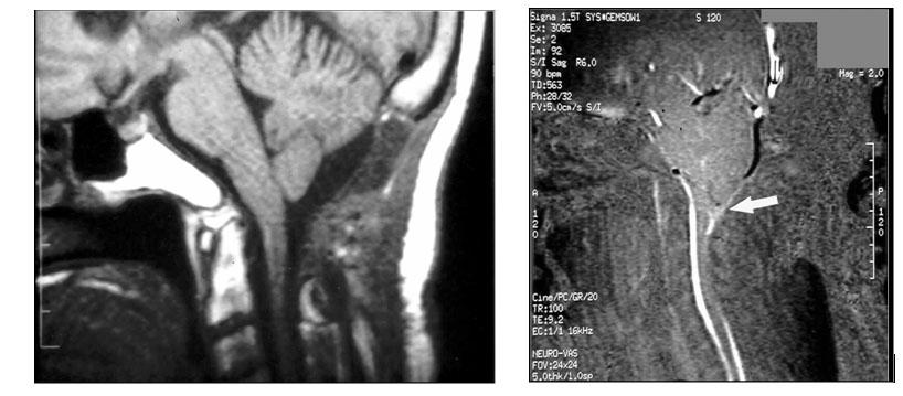 Аномалия Киари, МРТ после операции