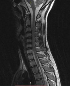 сирингомиелия, стеноз позвоночного канала
