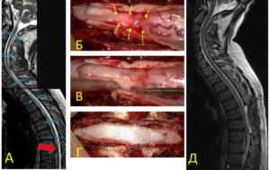 сирингомиелия, адгезивный арахноидит, операция, устранения фиксации спинного мозга