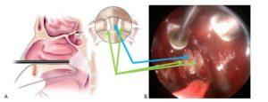 трансназальное удаление зуба С2 позвонка