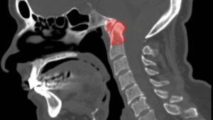 базилярная импрессия трансназальная операция